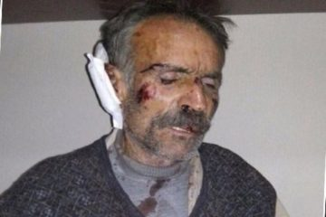 Victim of security forces' torture in sieged Kurdish village arrested