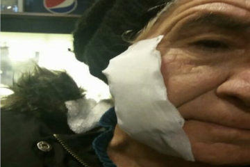 Mother of purge-victim beaten by Turkish police for protesting son's dismissal