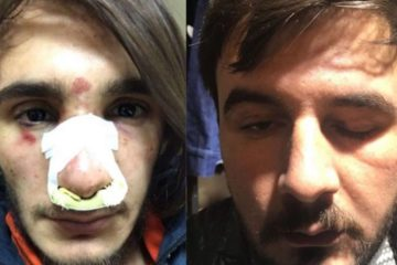 Four young people subjected to Turkish police violence due to hair style